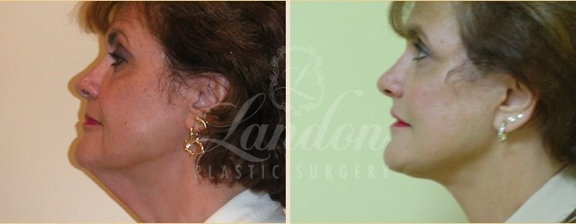 Face & Neck Lift Before & After Image
